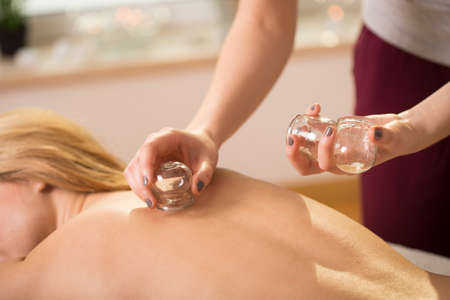 cupping therapy: Young woman having cupping therapy on her back