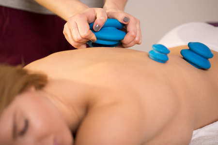 cupping therapy: Young woman having a treatment by chinese bubbles Stock Photo