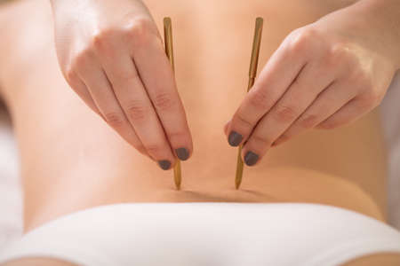 Young woman having her lumbar back acupuncture Stock Photo