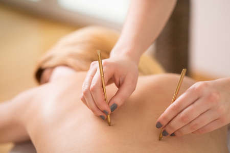Young woman and back acupuncture treatment