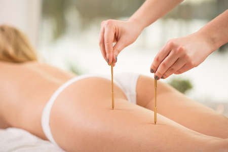 holistic therapy: Therapist pressing acupuncture points on young womans leg