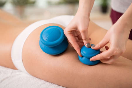 cupping therapy: Therapist setting the chinese bubbles on young womans leg