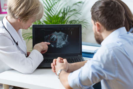 color consultation: Gynecologist showing to young married couple fetus ultrasound