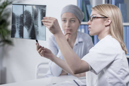 healthy lungs: Young doctor looking at her patients xray photo