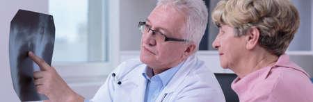 彼女の肺の患者の病変を示す医師