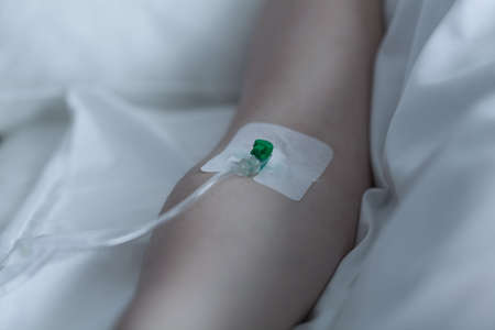 female catheter: Horizontal view of patient during intravenous therapy