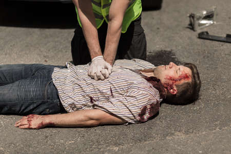 crimes: First aid for bloody car accident casualty Stock Photo
