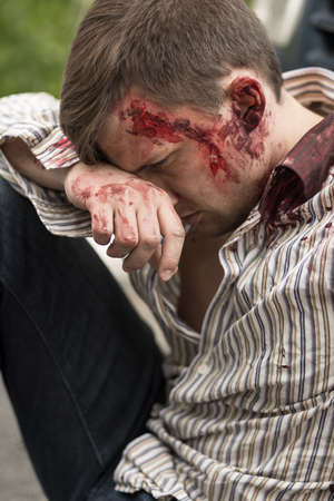 head: Young injured bloody man after car crash Stock Photo