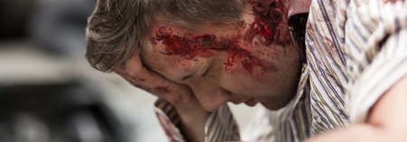 gash: Young man seriously injured on head and arm Stock Photo