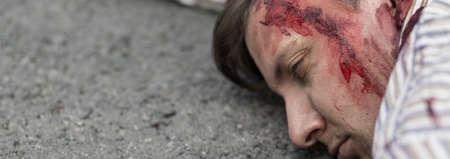 gash: Close up of fatality in terrorist attack Stock Photo
