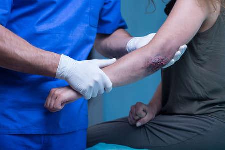 bruised: Woman with bruised elbow in emergency room