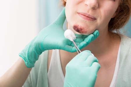 herida: Cuadro de la enfermera medicar herida en la cara del paciente