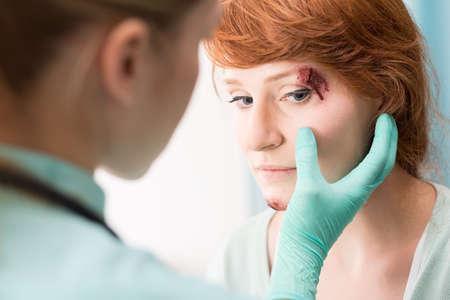 medicate: Photo of doctor in medical gloves medicating eye wound
