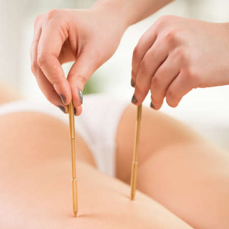 Therapist doing acupuncture on young womans legs