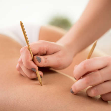 reduce: Beautician using acupuncture needles to reduce cellulite
