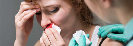 noses: Experienced doctor helping patient with bleeding nose Stock Photo