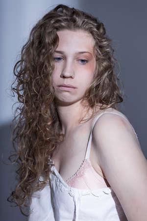 mujer golpeada: Golpeado encima de mujer joven con un ojo negro Foto de archivo