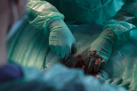 ailing: Close-up on surgeons hands removing ailing tissue during operation