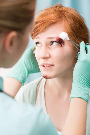 hemorragias: Mujer con sangrado corte por encima de su ojo