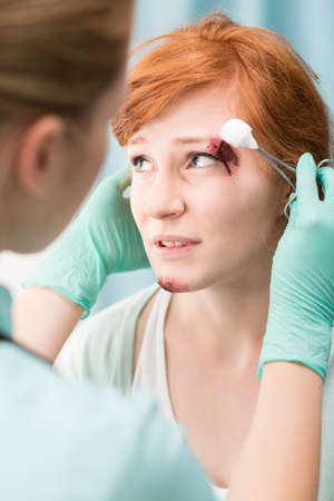 medical dressing: Woman with bleeding cut above her eye Stock Photo