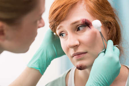 scar: Nurse dressing the wound above the eye