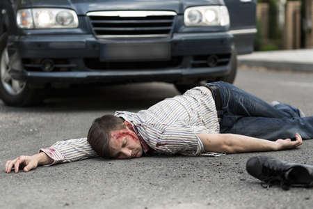 車にひかれる男は無意識に横たわっています。