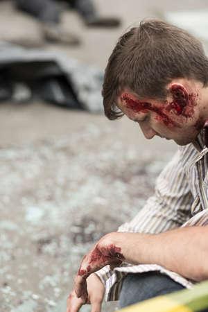 body wound: Injured man with bloody head wound.