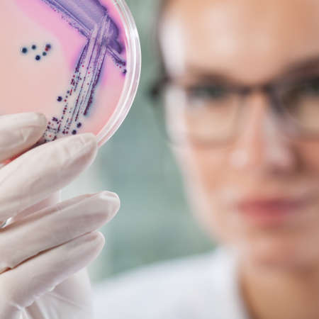 petri dish: Microbiologist holding a Petri dish with bacteria, horizontal