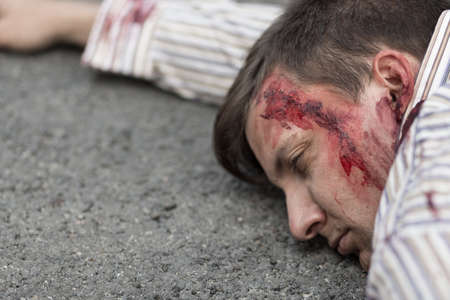 Photo of injured man with head wound after car accident