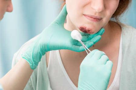 Close-up der Arzt auf Mädchen Bart Wundverband