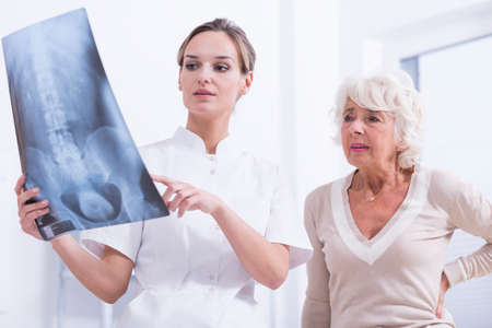 年配の女性に脊柱の x 線写真を説明する若い医者 写真素材 - 64163757