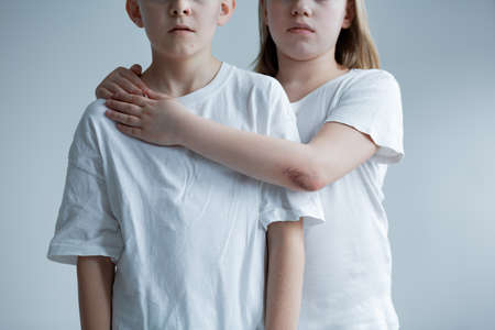 Physical aggression against children - conceptual photo