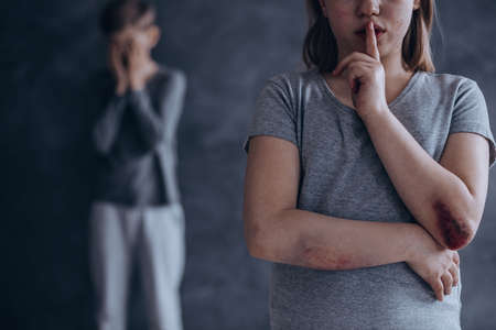 Conceptual photo showing the silence of domestic violence Imagens