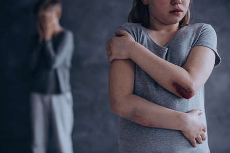 Depressed little children living in fear being physically abused