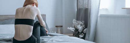 거식증을 앓고있는 스키니 창백한 여성이 거식증을 앓고있는 혼자 침대에 웅크 리다.