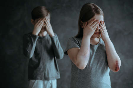 Frightened siblings crying. Children from pathological family Imagens