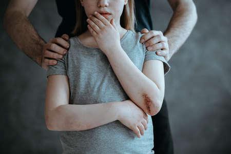 ひじを痛んで泣いている若い女の子の後ろに立っている父
