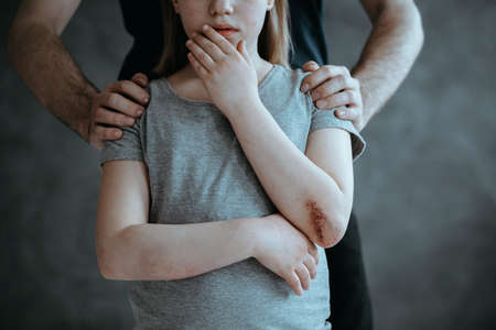 Father standing behind crying young girl with hurt elbow Standard-Bild