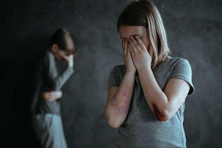 あざのある若い女の子と暗い部屋で一人で泣いている少年 写真素材 - 93798260