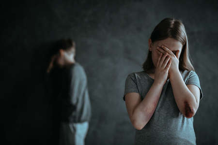 あざのある小さな女の子が立って、ぼやけた背景を持つ写真の中で手で彼女の顔を覆う 写真素材 - 94197231