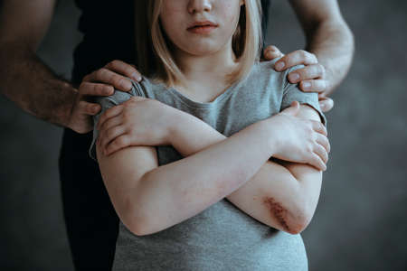 Man holding hands on little girls shoulders standing with closed arms with wound on her elbow
