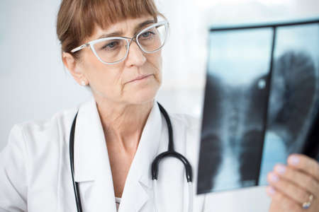 Focused, female doctor holding and analyzing an x-ray photo of lungs