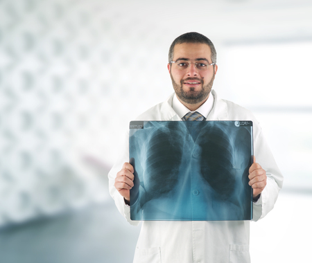 Doctor holding x-ray in front of his chest photo