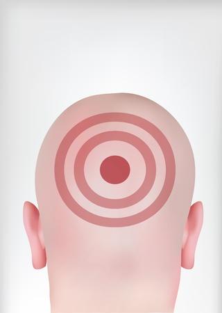 sharpshooter: target head Illustration