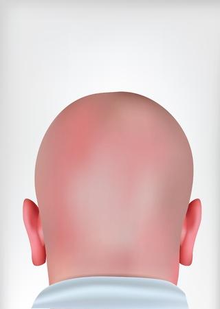 calvicie: la cabeza calva