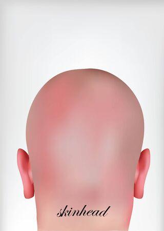 bald head: skinhead