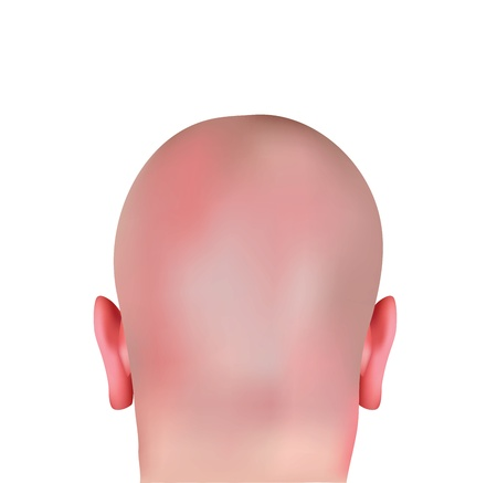 bald head: Realistic Bald Head  Illustration