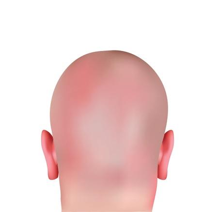 Realistic Bald Head  Illustration
