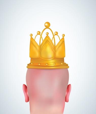 calvicie: Ilustración realista de la cabeza calva con corona de oro