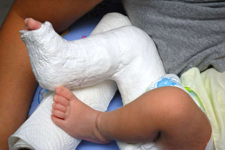 misadventure: Baby Foot In Bandage And Cast . Stock Photo